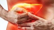 La cirrosis, cada vez más letal: qué es y como te afecta