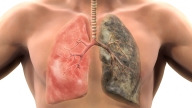 Qué es el tabaquismo y cómo puede matarte