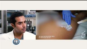 Aumento de glúteos sin cirugía