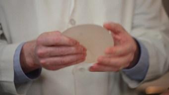 Retiran implantes de seno por riesgo de cáncer