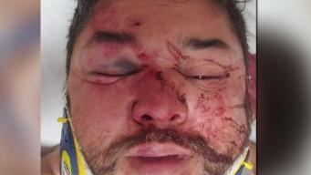 Presunta víctima asegura fue atacado en Phoenix por ser gay