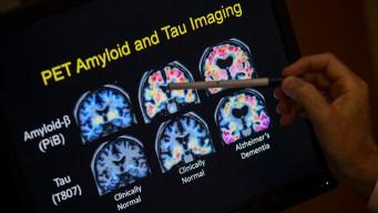 Hispanos con riesgo de Alzheimer por patrones de sueño