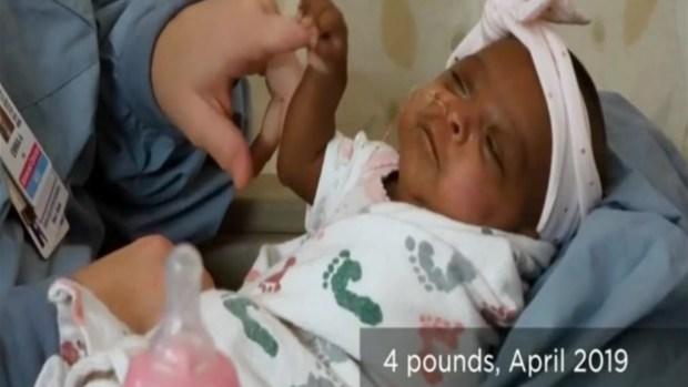 [TLMD - SD] En video: la bebé más pequeña del mundo nació en San Diego, California