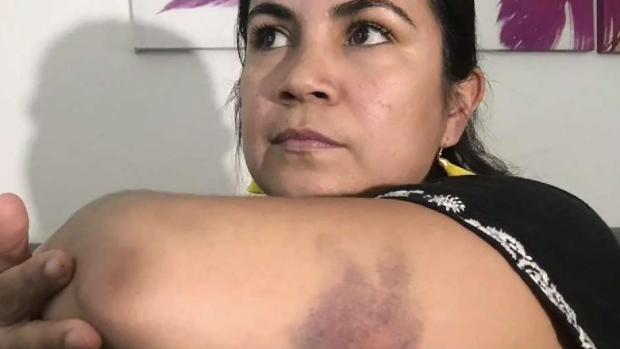 [TLMD - AZ] Mujer dice que fue víctima de intento de secuestro