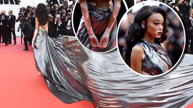 Morena metálica, la más famosa modelo con vitiligo cumple su sueño