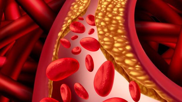 Qué es el colesterol, el asesino que llevas en la sangre
