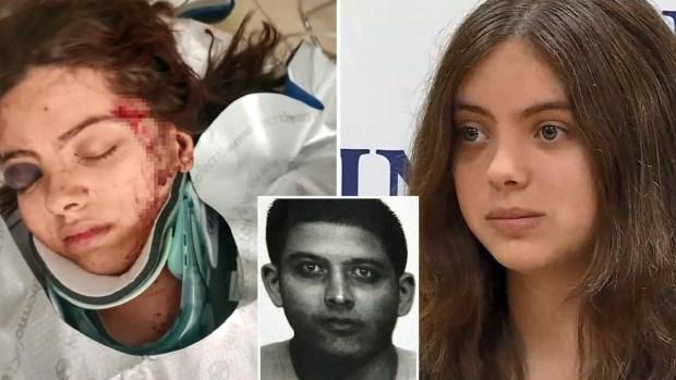 """""""Quiero que lo atrapen"""", joven brutalmente atacada pide justicia"""