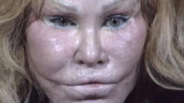 """Revelan foto policial de """"mujer gato"""" tras presunto ataque a novio"""