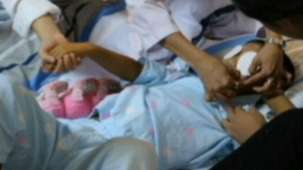 Video: Exitoso implante de ojos a niñito