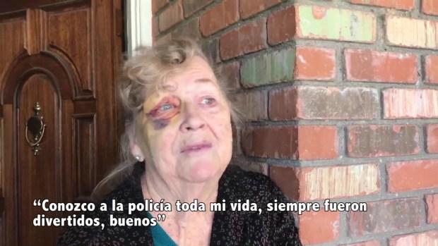 Virginia, la anciana herida durante arresto