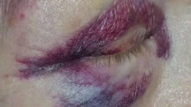 Abuela de Mesa presuntamente lesionada por agentes