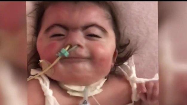 Bebé que padece de una rara enfermedad lucha por vivir