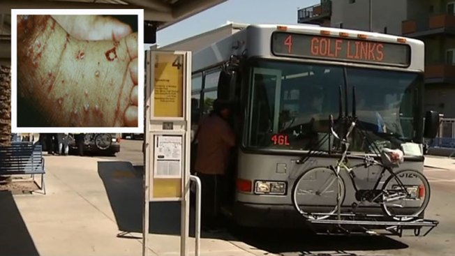 Tucson: Limpian autobuses tras caso de sarna