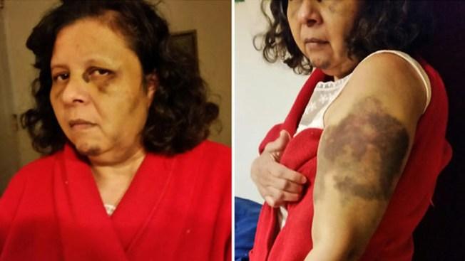 Empleada denuncia brutal tortura en Queens