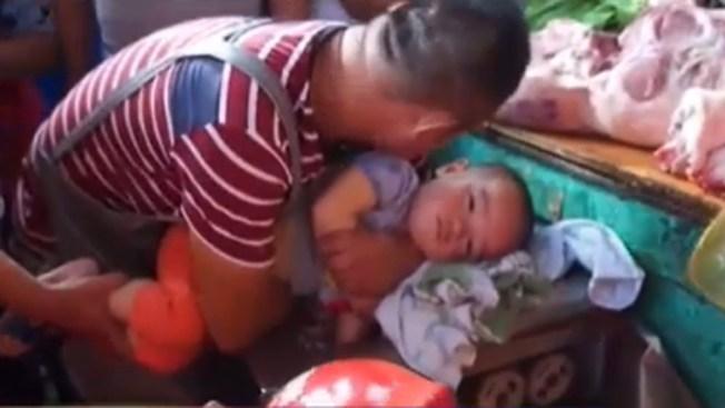Niño salva su bracito de moledora de carne