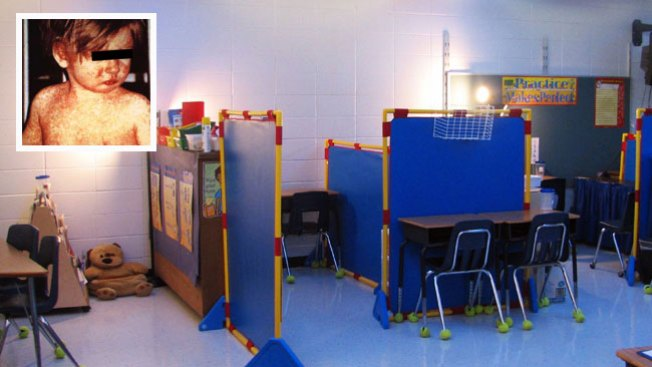 Posible caso de sarampión en escuela de Arizona