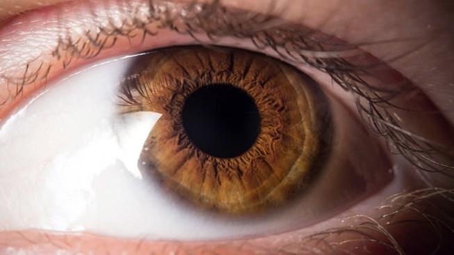 Retiran 14 gusanos del ojo de una mujer
